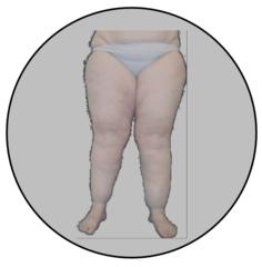 Obesitas & Oedeem